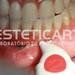 laboratorio_de_protese_dentaria_cad_cam-568