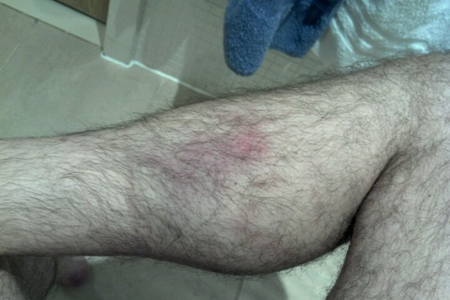Leg Bruise