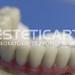 laboratorio_de_protese_dentaria_cad_cam-664