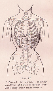 an illustration of ribs constricted by a corset