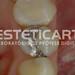 laboratorio_de_protese_dentaria_cad_cam-677