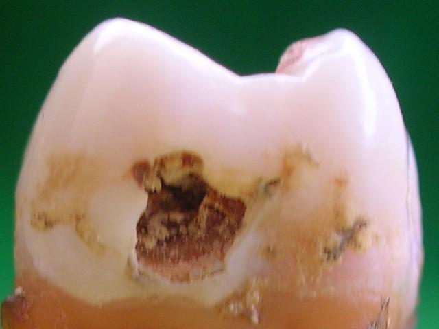 Esmalte perforado