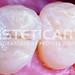 laboratorio_de_protese_dentaria_cad_cam-673