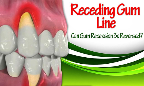 Gum Recession Facts And Advice