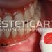 laboratorio_de_protese_dentaria_cad_cam-569