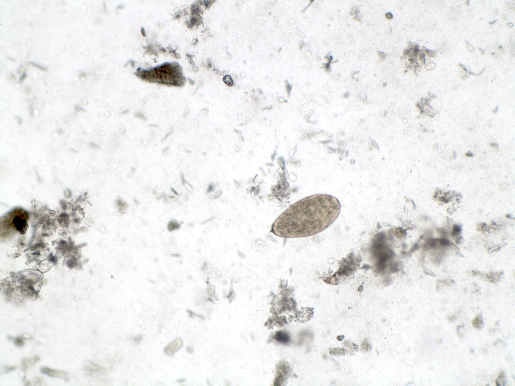 Fasciola hepatica x 100mag (2)