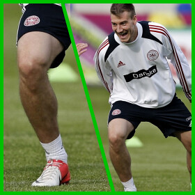 Impressive Calves of Nicklas Bendtner