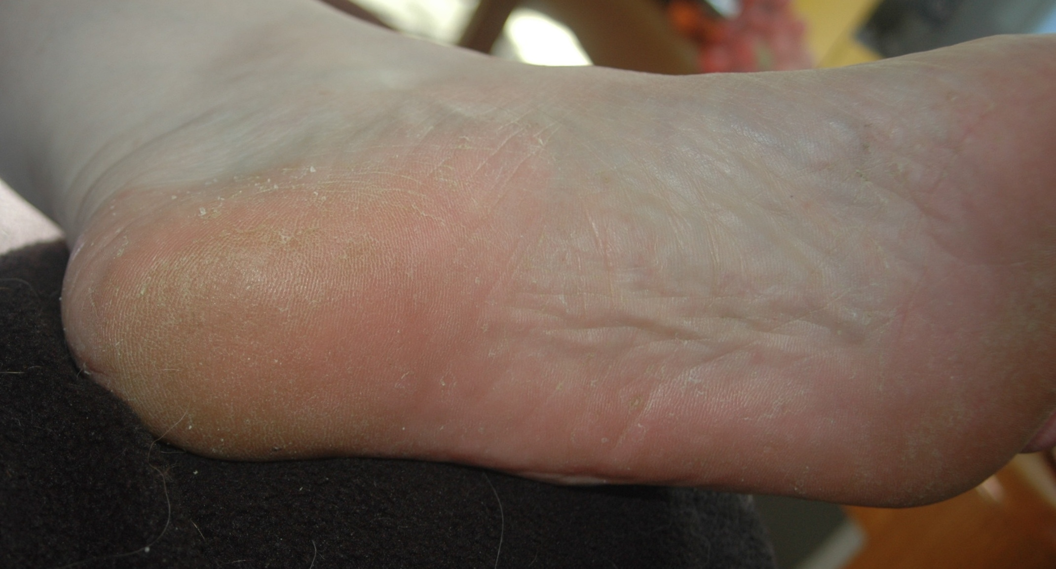 athletes foot paper Athlete's foot, or tinea pedis, is an infection of the skin and feet that can be caused by a variety of different fungi although tinea pedis can affect any portion of the foot, the infection most often affects the space between the toes athlete's foot is typically characterized by skin.