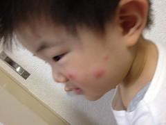 虫刺され… (2012/5/20)