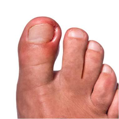Prevent ingrown toenails naturally