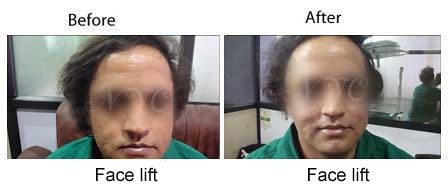before-after-facelift1
