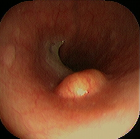 Dermoscopy of other non-melanocytic lesions - DermNet NZ