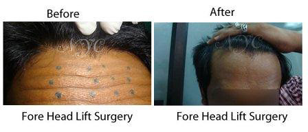 forehead lift surgery before and after