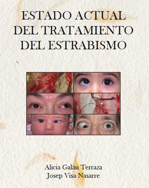 Libro de la doctora Alicia Galán Terraza y José Visa Nasarre sobre el tratamiento del estrabismo