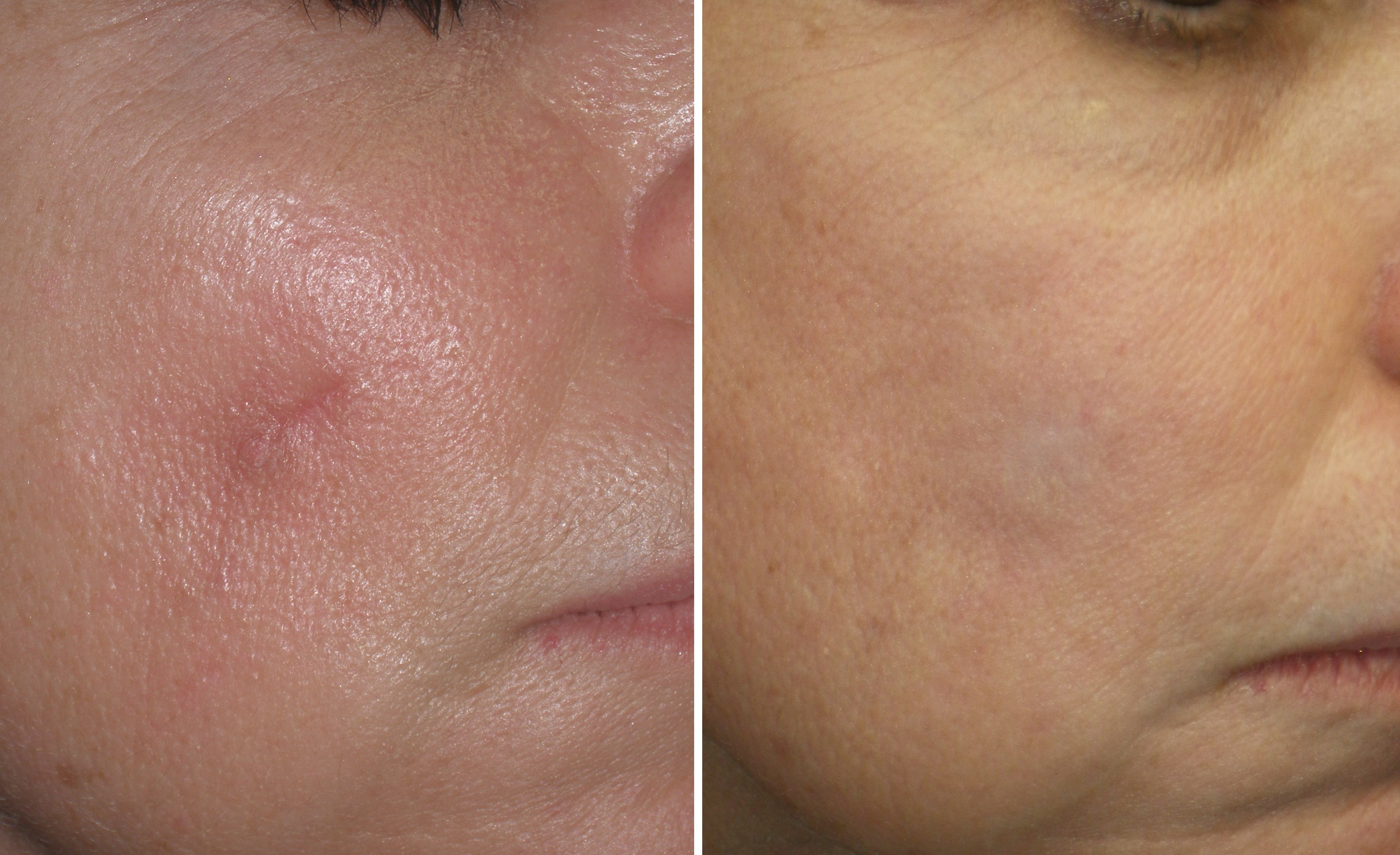Facial Scars And Keloids Gallery New