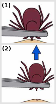 Illustrating Tick Removal