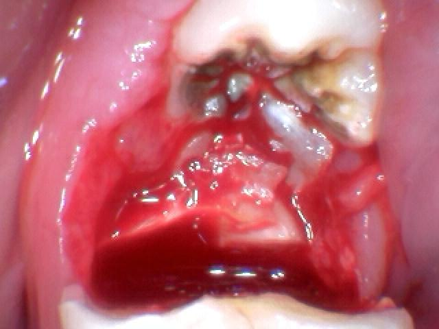 Occlusal Cavity On The Impacted Wisdom Tooth 17 A Closer Flickr
