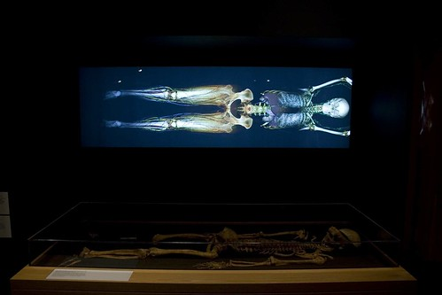Old skeleton and modern x-ray scan