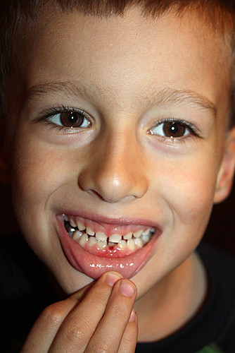 Nathans-2nd-lost-tooth