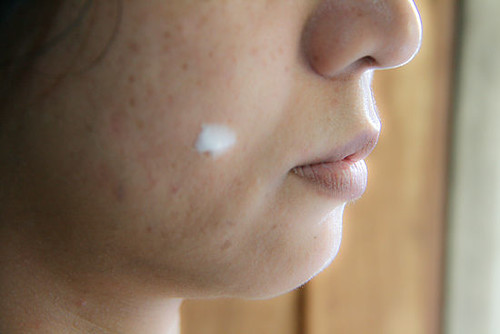 550px-Apply-Toothpaste-on-Pimples-Step-4