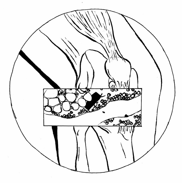 knee and cell diagram