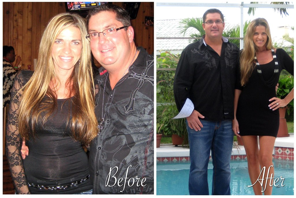 Bill And Dawn Ball Before And After Javita Weight Loss Cof Flickr