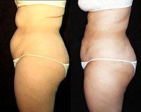 What's the difference between a tummy tuck and liposuction? Dr. Joel Schlessinger shares.