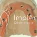 Implantes dentários visando Reabilitação Total dos dentes
