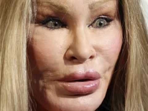 jocelyne wildensteinVmpOalRQUVZTWVEx_o_plastic-surgery-disasterjocelyn-wildenstein
