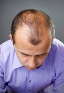 Best Hair Loss Treatment