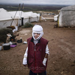 Abdullah Ahmed, 10, who suffered burns in a Syrian government airstrike and fled his home with his family, stands outside their tent at a camp for displaced Syrians in the village of Atmeh, Syria, on December 11, 2012. This tent camp sheltering some of th