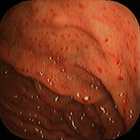 gastritis mit säure aufbau.jpg