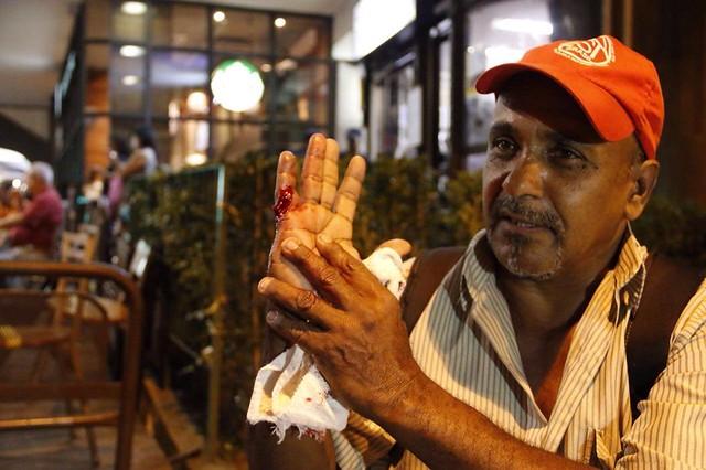 Militante do MTST é atingido por estilhaço de bomba em ato - Créditos: José Eduardo Bernardes / Brasil de Fato