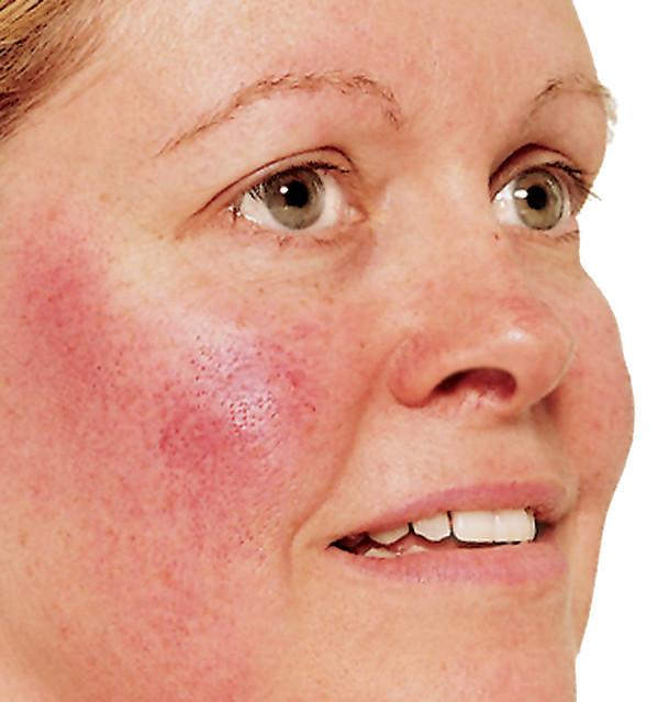 Skin disease mistaken for acne