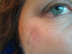 Melanoma Scar, November