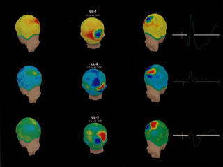 Brain scan using new EEG in 1997