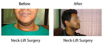 before-after-neck-lift