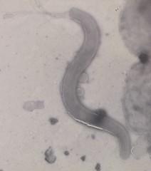 Brachyspira strain 30446 electron micrograph