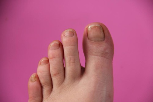 Margaret Dabbs medical pedicure