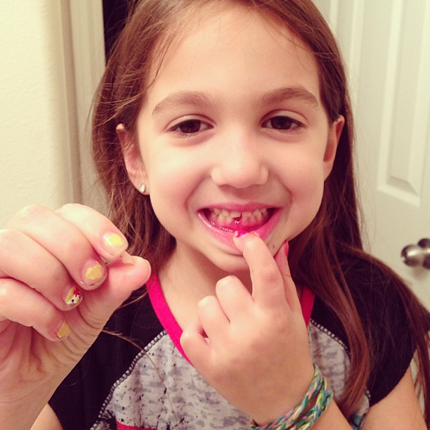 Emma is a snaggletooth!!! She lost her first tooth tonight!!!!