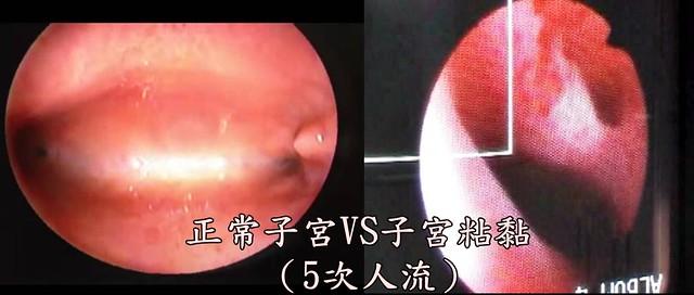正常子宮VS子宮粘黏(5次人流)照片