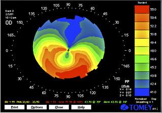 La confirmación del queratocono vendrá de la mano de una prueba oftalmológica, denominada topografía corneal, que consiste en la representación gráfica de la superficie de la córnea, de una forma similar a la que se utiliza en los mapas geográficos.