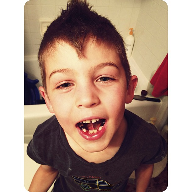 And another tooth bites the dust. #herecometheawkwardyears#vscocam_kids #afterlight