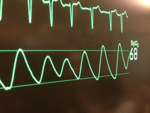 Life heart beat