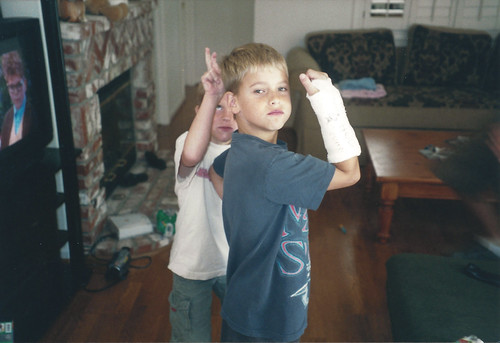 Boy #3 showing off his cast with boy#4 giving him bunny ears from behind.