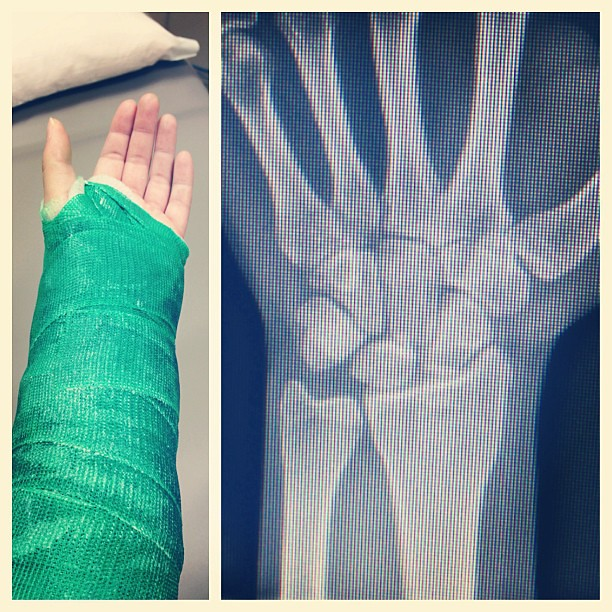 No scaphoid damage. No surgery. Just a regular run of the mill break. Feeling lucky and embracing my inner hulk for the next 3 weeks. So grateful I am actually crying tears of joy! #stpattysday #incrediblehulk