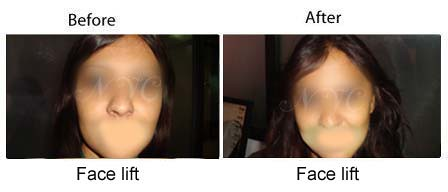 before-after-facelift2
