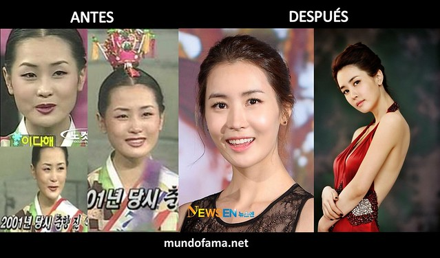 KOREAN ACTRESS BEFORE AND AFTER PLASTIC SURGERY ACTRICES COREANAS CON CIRUGIA PLASTICA (11)