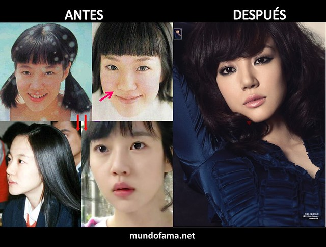 KOREAN ACTRESS BEFORE AND AFTER PLASTIC SURGERY ACTRICES COREANAS CON CIRUGIA PLASTICA (5)