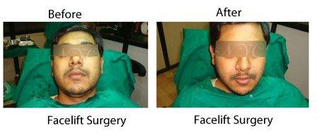 before-after-facelift